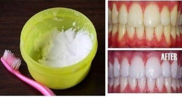 How-to-DIY-Natural-Teeth-Whitening-in-Minutes-at-Home