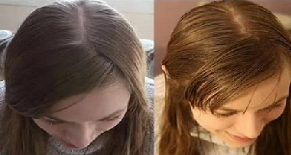 She-Didn't-Wash-Her-Hair-For-31-Days-This-Is-What-Happened-To-Her-After-The-Experiment