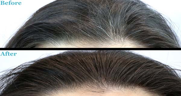 UNBELIEVEABLE-This-Magical-Drink-Removes-White-Hair