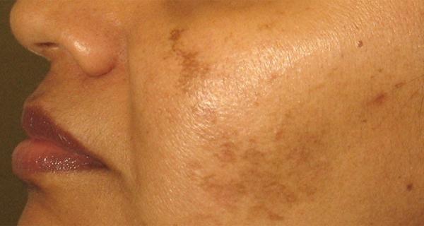La tache de pigment sur la joue sous loeil