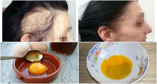 The-Magic-Recipe-For-Fastest-Hair-Growth-3-Ingredients-Only