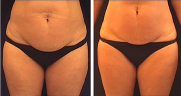 The-Secret-Recipe-For-a-Drink-That-quickly-Melt-Cellulite