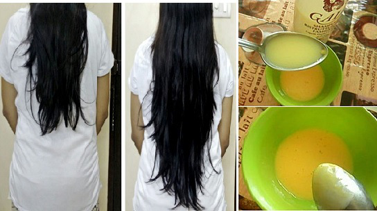 This-Homemade-Balm-Stimulates-Hair-Growth-and-Makes-it-Shiny-1
