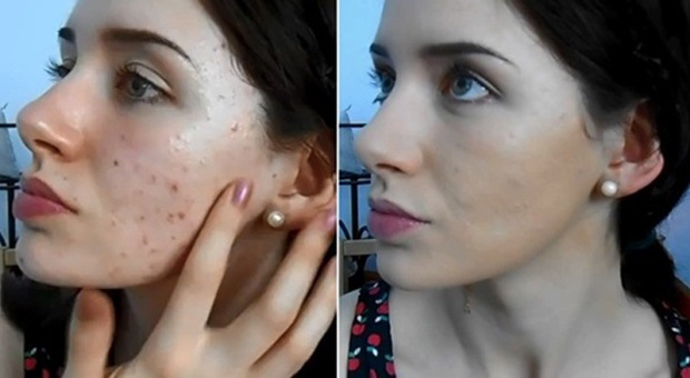 Very-Effective-Homemade-Cream-for-Scar-Removal