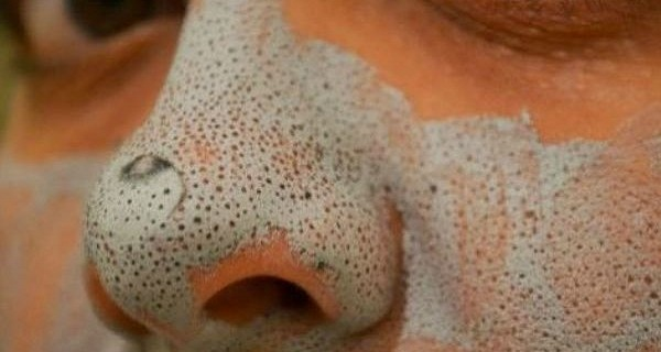 Get-Rid-of-Blackheads-and-Make-Your-Face-Shine-with-This-Amazing-Home-Remedy