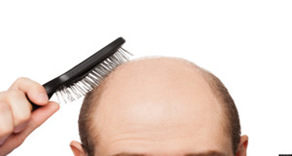 Recipe-for-baldness-Hair-begins-to-grow-after-two-days-RECIPE