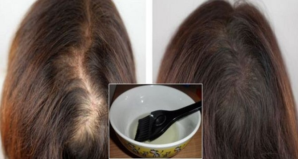 Extremely-Effective-1-Ingredient-Hair-Mask-That-Will-Save-and-Regrow-Your-Hair