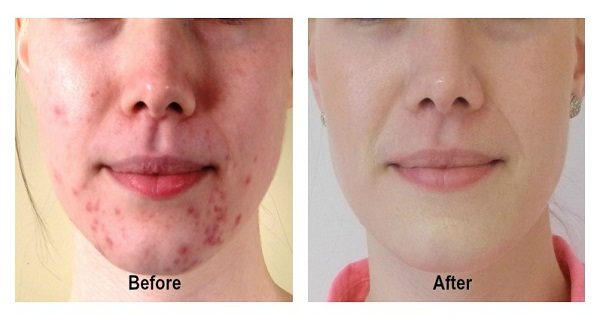 Make-Acne-And-Pimples-Disappear-Forever-In-14-Days