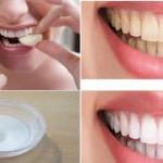 Blanchir vos dents en moins de deux minutes, les résultats sont garantis!