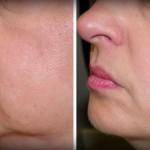Traitez les rides et le relâchement du visage avec ce remède naturel de seulement 2 ingrédients