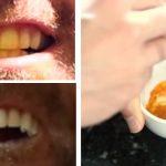 Il vous montre une recette naturelle très facile pour blanchir vos dents