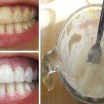 Voici comment blanchir vos dents avec seulement 2 ingrédients