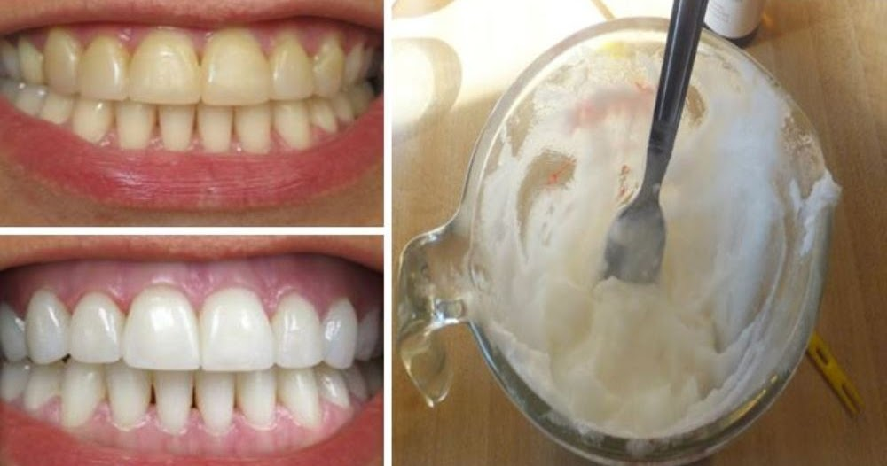 how-to-whiten-teeth-naturally-at-home-with-2-ingredients