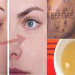 Cette pâte réduit les taches sombres et nettoie votre peau en seulement 20 minutes