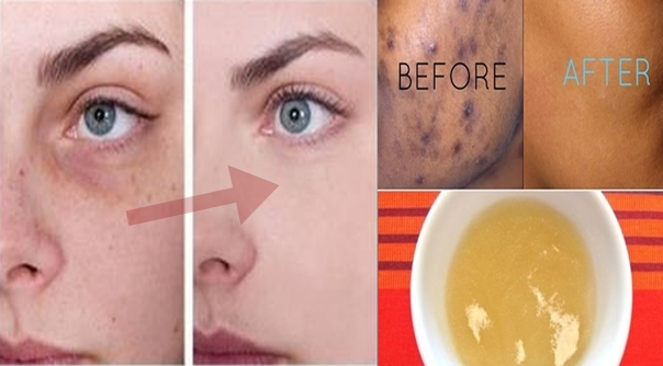 these-remarkable-homemade-remedies-will-help-you-get-rid-of-black-spots-on-your-face-almost-instantly