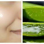 Comment obtenir une peau claire et éclatante en utilisant un gel d'aloe vera