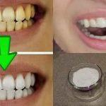 Voici comment blanchir vos dents en seulement 2 minutes