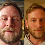 14 superbes photos prises avant et après que les gens ont arrêté de boire