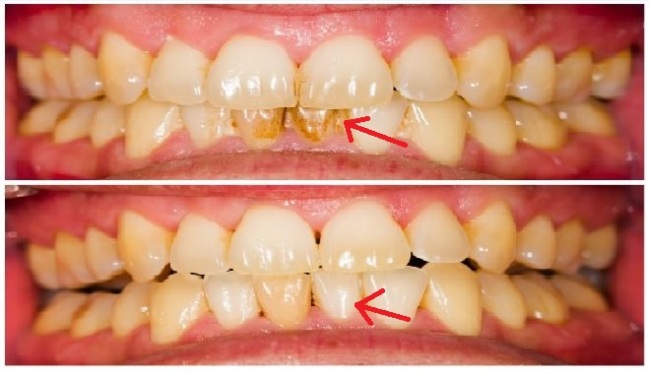 Remove-Tartar-Easy-At-Home.-This-Is-How-You-Can-Be-Your-Own-Dentist