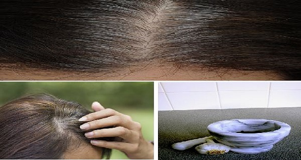 5-Minutes-To-Get-Rid-Of-White-Hair-And-Regrow-Hair-Naturally