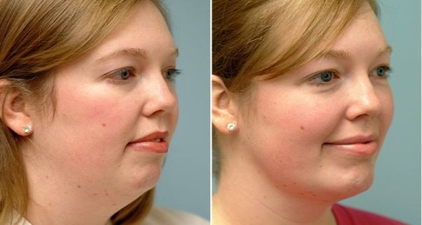 Incredible-Exercises-to-Tighten-Up-Your-Loose-Skin-and-Lose-Double-Chin