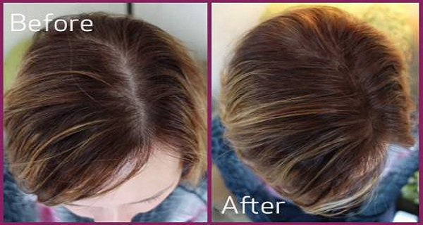 4-Natural-Ways-to-Regrow-Hair-in-10-Days
