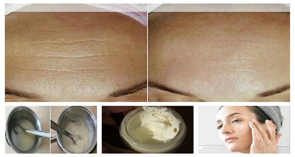 Anti-Aging-Homemade-Cream-to-Get-Rid-of-Lines-and-Wrinkles-on-Your-Face-in-Less-Than-Two-Weeks