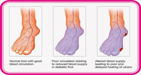 Do-You-Suffer-From-Poor-Circulation-Here-Is-How-To-Solve-Your-Problem-In-Just-20-Minutes