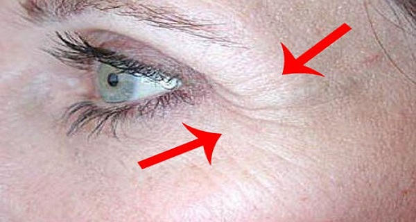Apply-This-One-Ingredient-and-Get-Rid-of-Crows-Feet-and-Fine-Lines-around-Your-Eyes