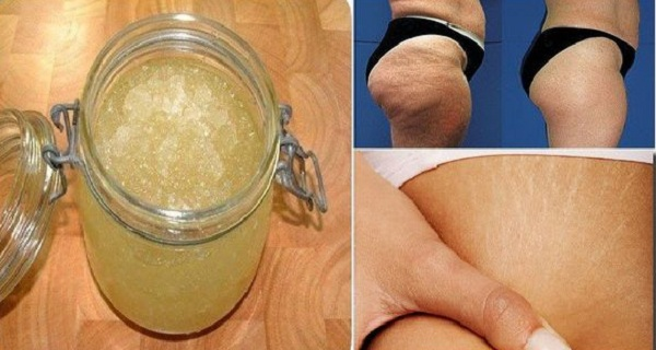 Get-Rid-of-Stretch-Marks-and-Cellulite-Forever-Using-This-2-Ingredient-Homemade-Exfoliator