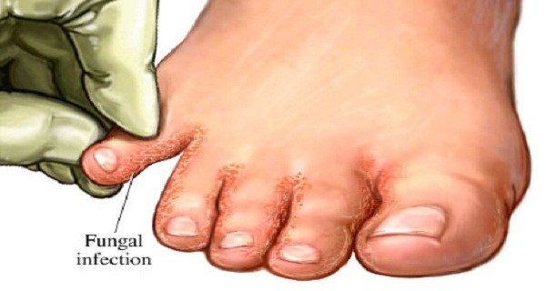 say-goodbye-to-fungal-infections-soak-your-feet-in-600x320