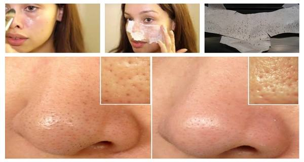 An-Effective-Face-Mask-to-Remove-Blackheads-at-Home-in-Two-Steps