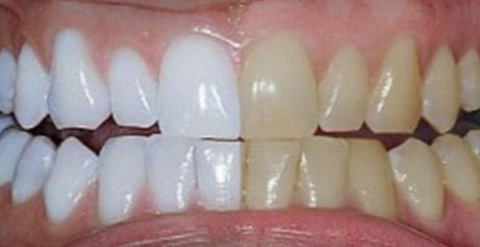 diy-toothpaste