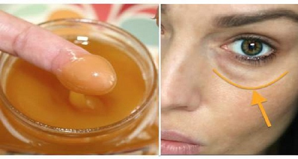 Apply-This-Mixture-On-The-Dark-Circles-Under-Your-Eyes-And-Wake-Up-Without-Them-Results-Guaranteed