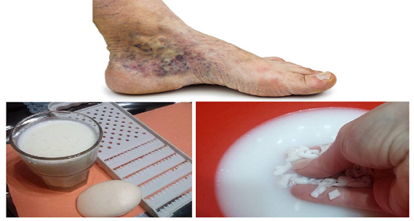 Magical-Recipe-for-Varicose-Veins-and-Thrombosis-with-Only-2-Simple-Ingredients