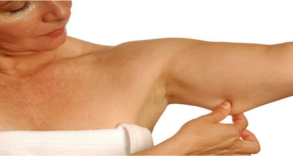 get-rid-of-flabby-arms