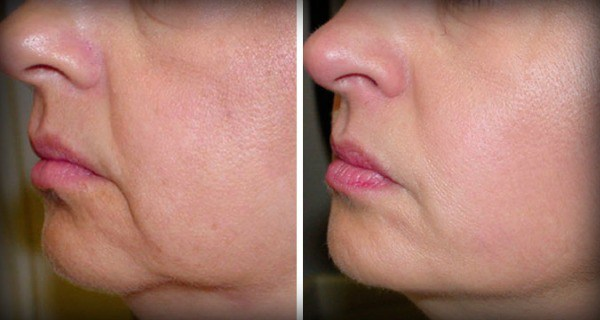 No-More-Wrinkles-and-Sagging-Skin-on-Your-Face