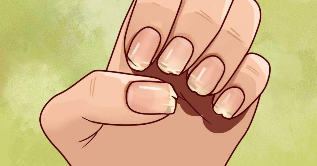 ongles-cassants