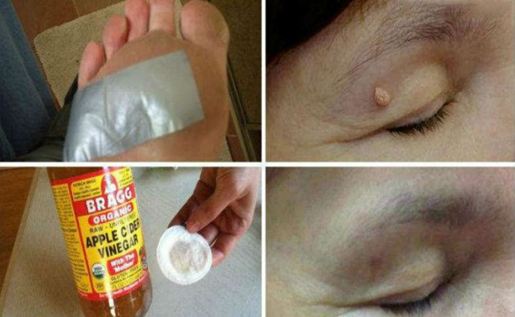 remove-warts-dark-spots-blackheads-and-skin-tags-quickly-and-effectively-with-these-natural-remedies